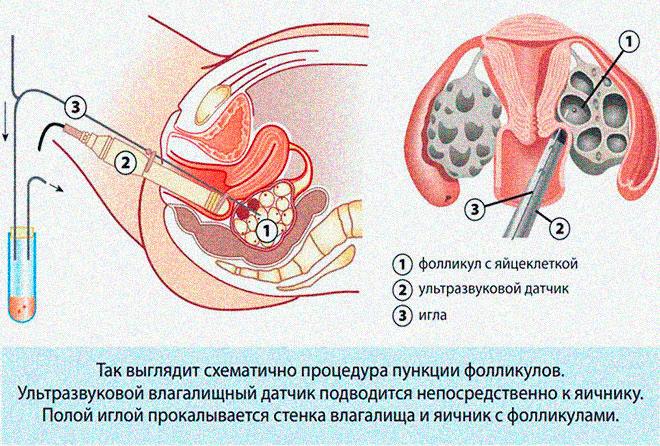 схема пункции яйцеклеток при эко