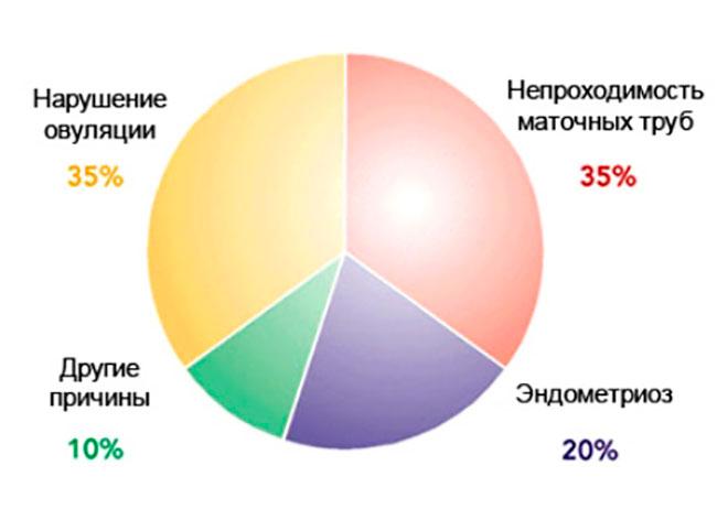 инфографика факторов бесплодия