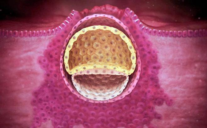 имплантация эмбриона в стеку матки