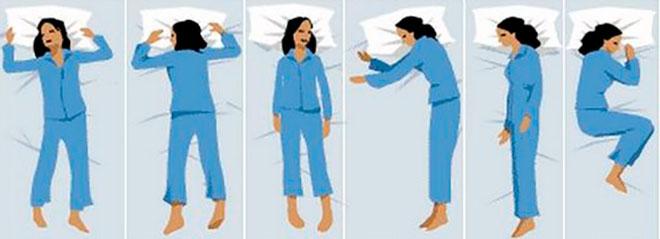 позы для правильного сна после эко