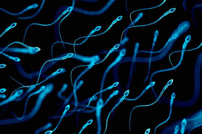 много сперматозоидов