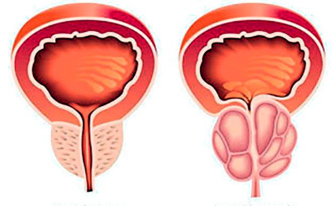 здоровая и воспаленная простата на рисунке
