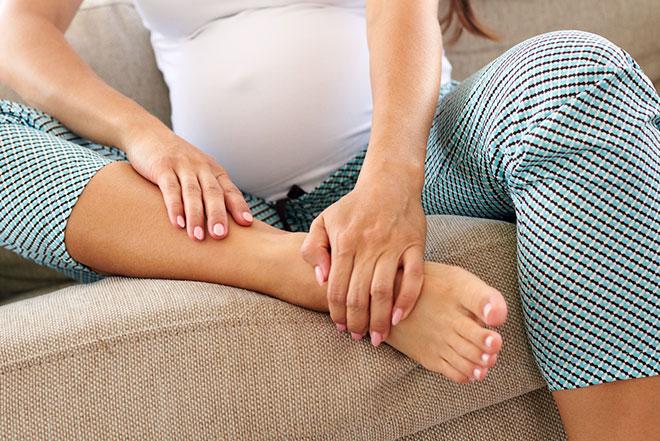 у беременной отекают ноги