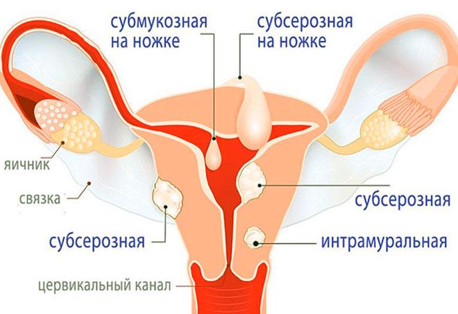 виды миомы матки