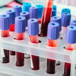 Анализ крови на ЛГ: нормы в таблице