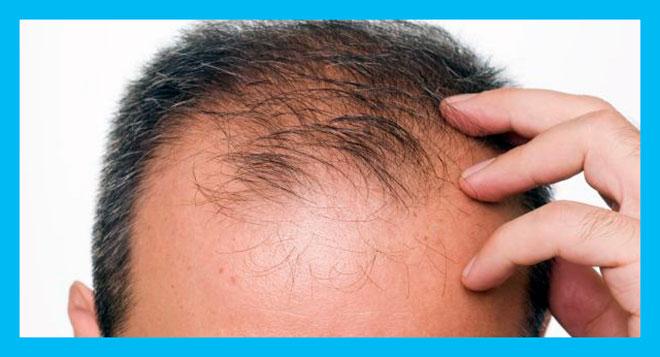 у мужчины выпадают волосы на голове