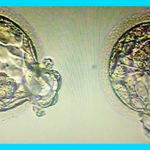 Хетчинг эмбрионов: как его делают и зачем он нужен