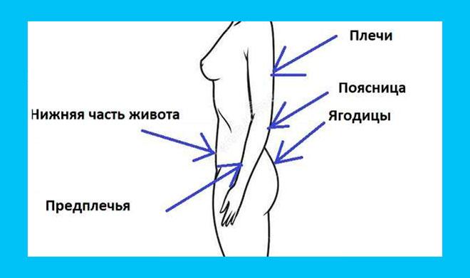 схема нанесения дивигеля на тело