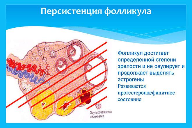 картинка разъясняющая свойства персистирующего фолликула