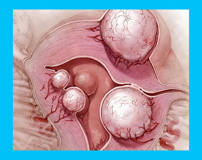 разновидности миомы матки на рисунке