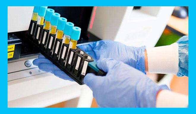 загрузка крови в пробирках для анализов в гематологический анализатор