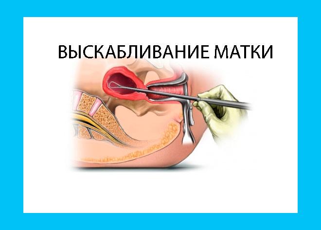 рисунок процедуры по выскабливанию матки
