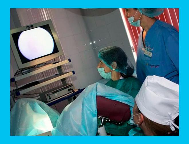процедура выскабливания матки в операционной