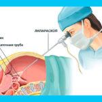 Лапароскопия маточных труб: подготовка, операция и беременность