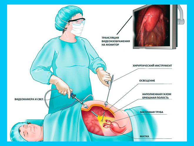 рисунок операции по удалению маточной трубы методом лапароскопии