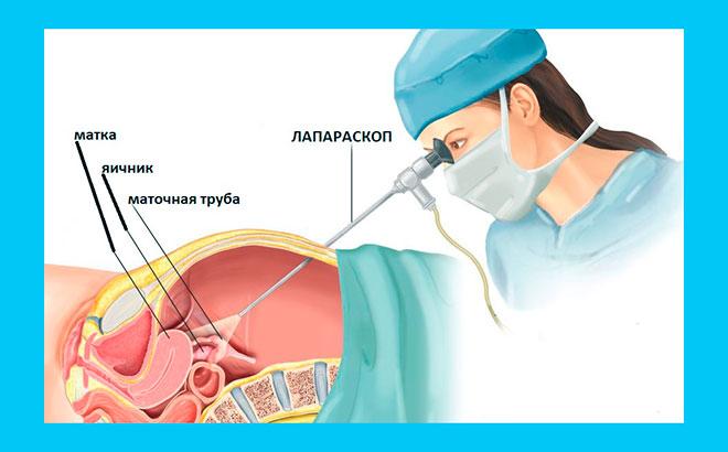 рисунок лапароскопии маточных труб