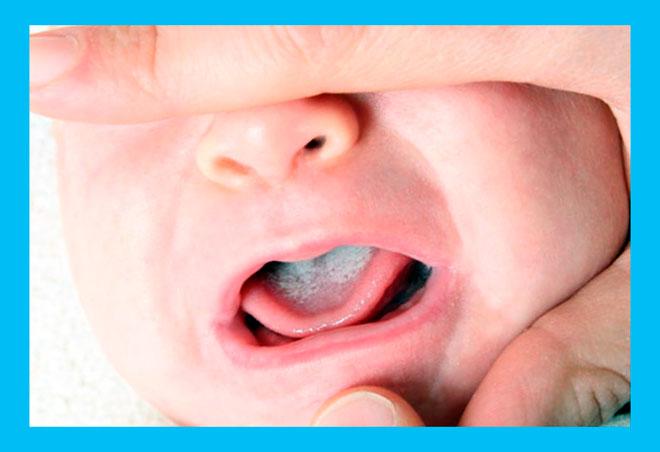 у новорожденного малыша молочница во рту