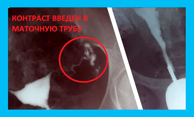 фотография результата мсг левой маточной трубы