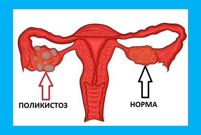 на картинке показан яичник с поликистозом и здоровый яичник