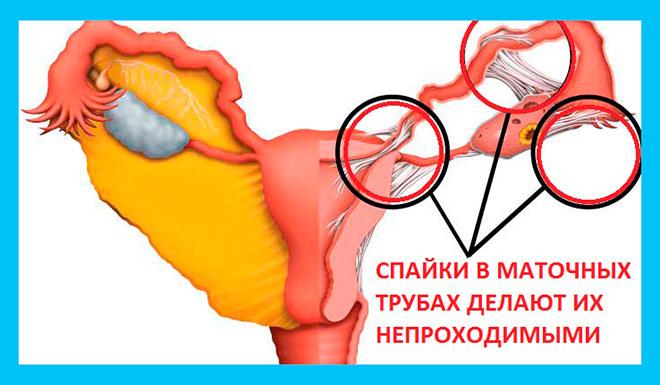 рисунок непроходимых маточных труб из-за спаечного процесса