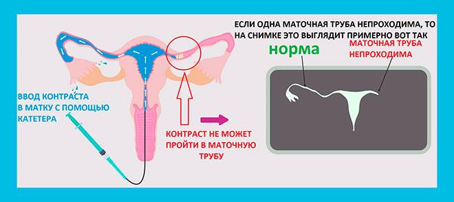 рисунок объясняющий принцип проведения исследований прохождения маточных труб с применением контрастного вещества