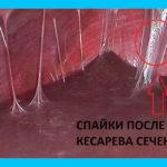 Спайки после кесарева: симптомы, лечение и профилактика