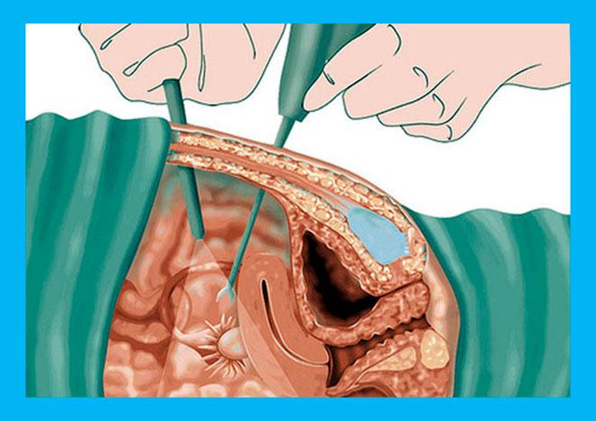 лапароскопия спайки маточных труб