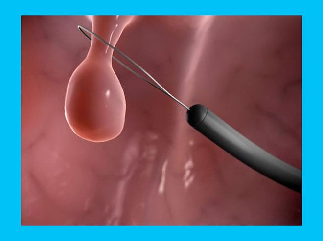 операция по удалению полипа в матке