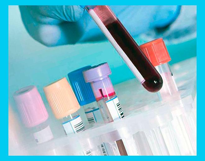 лаборант держит пробирку с кровью для анализа