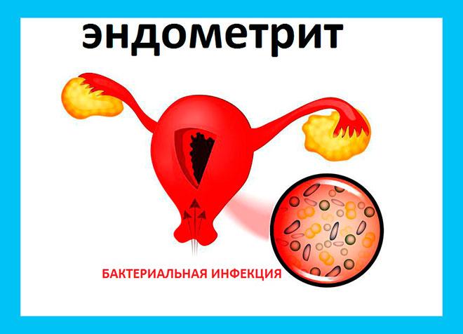бактериальная инфекция проникает в матку при эндометрите