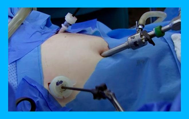 женщине в операционной делают лапароскопию маточных труб