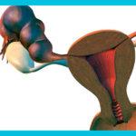 Действительно ли можно забеременеть при гидросальпинксе