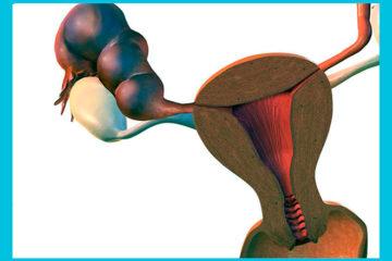 рисунок гидросальпинкса