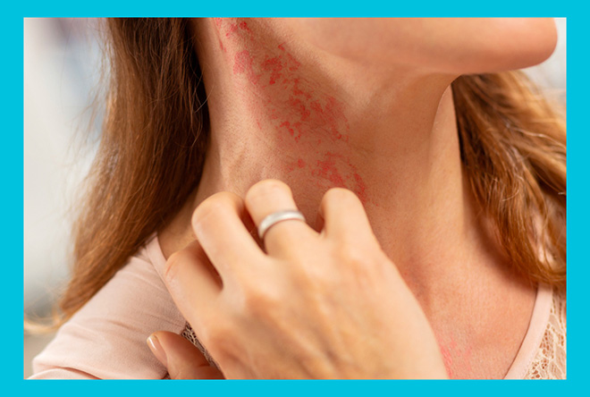 у девушки аллергическая реакция на шее