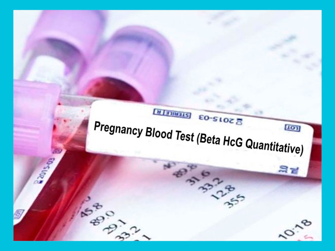 Пробирка с кровью на анализ