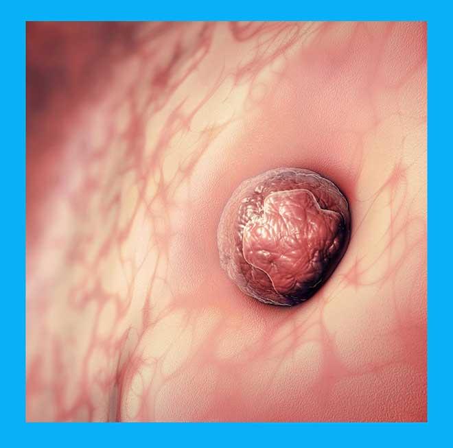 имплантация зародыша